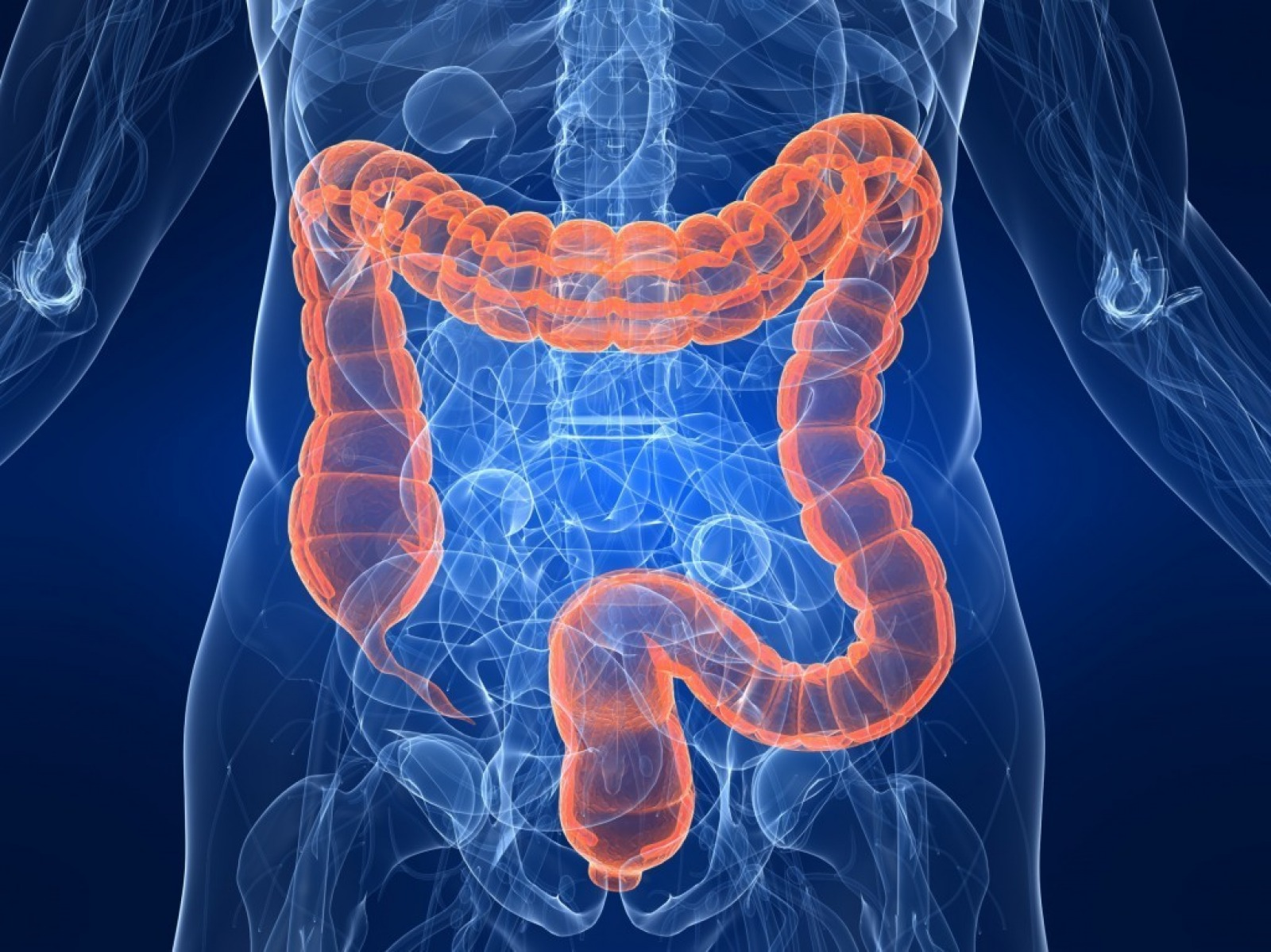 O QUE É DISBIOSE INTESTINAL ?
